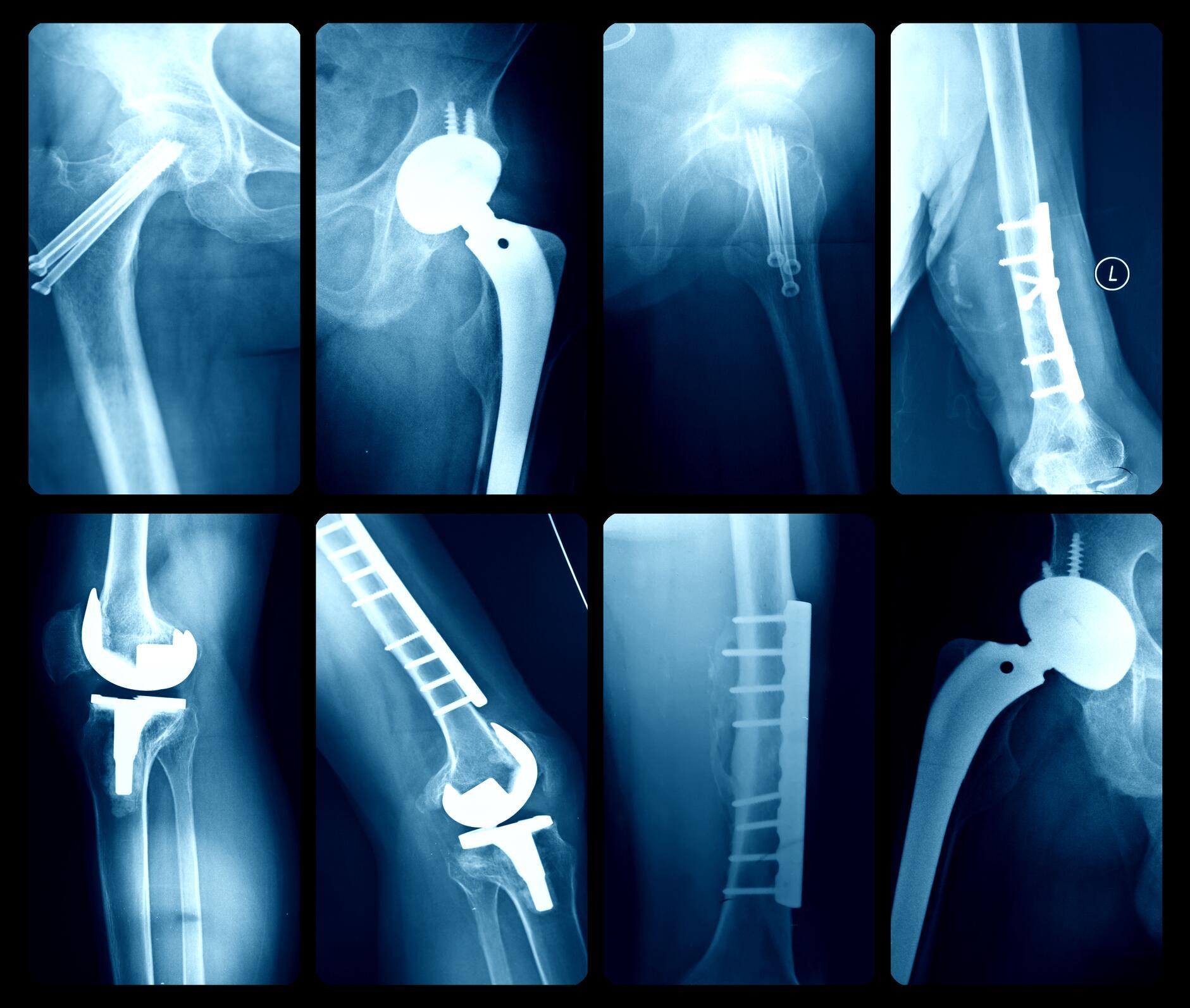 Bild zu Implant Files