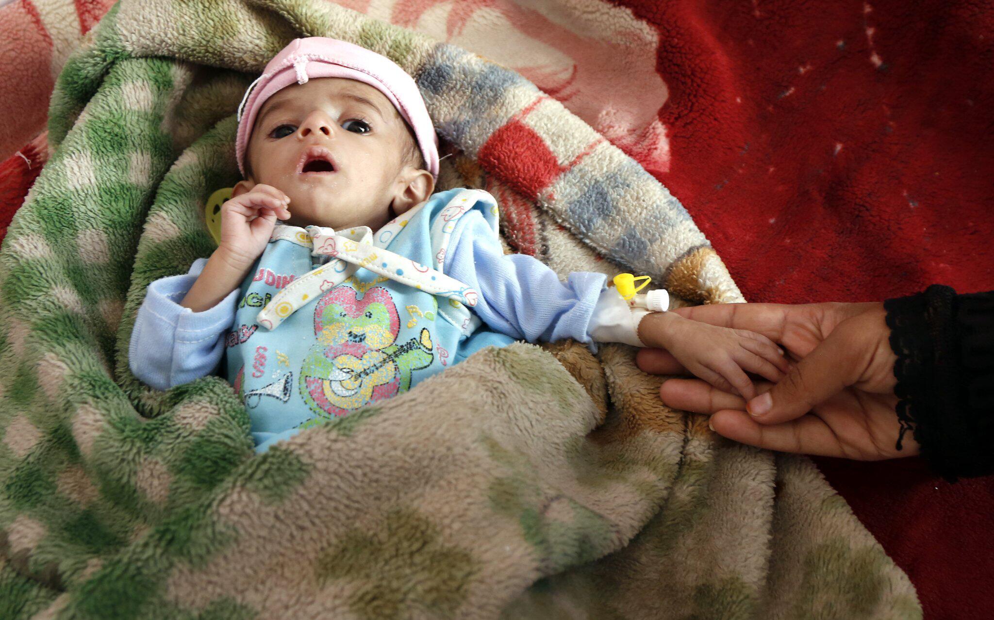 Bild zu Unterernährung im Jemen