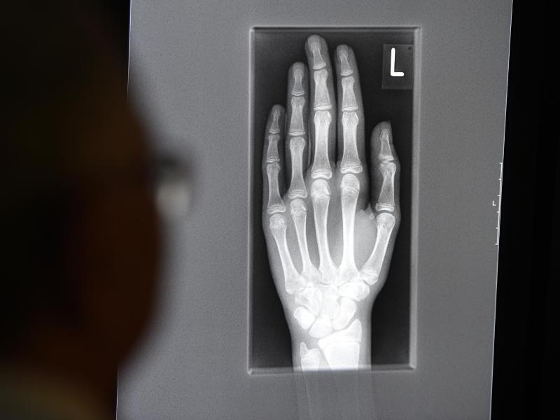 Bild zu Röntgenbild