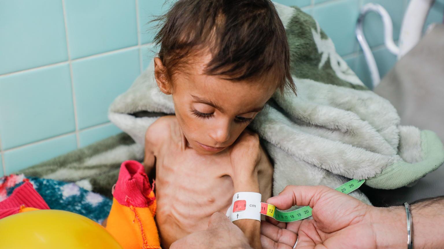Bild zu Jemen, Mangelernährung, Kinder