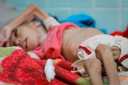 Jemen, Hunger, Krieg, Ernährung, UN
