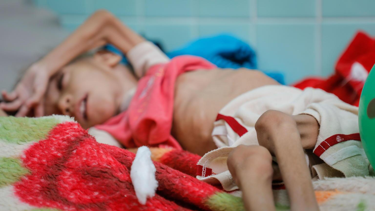 Bild zu Jemen, Hunger, Krieg, Ernährung, UN