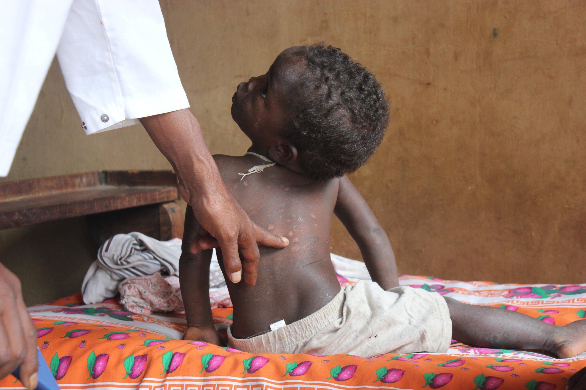 Bild zu Lepra auf Madagaskar