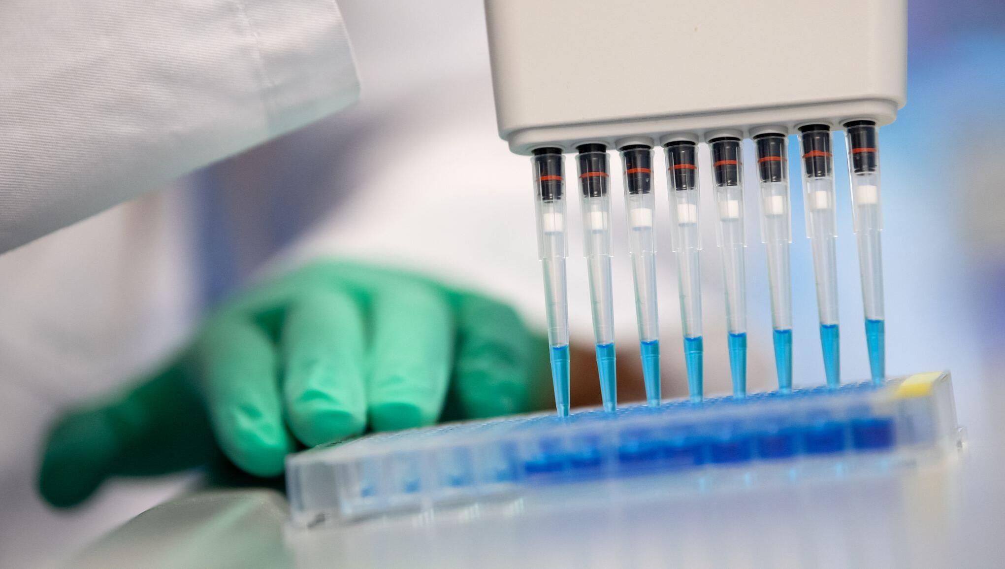 Bild zu Coronavirus - Corona-Bluttests in München