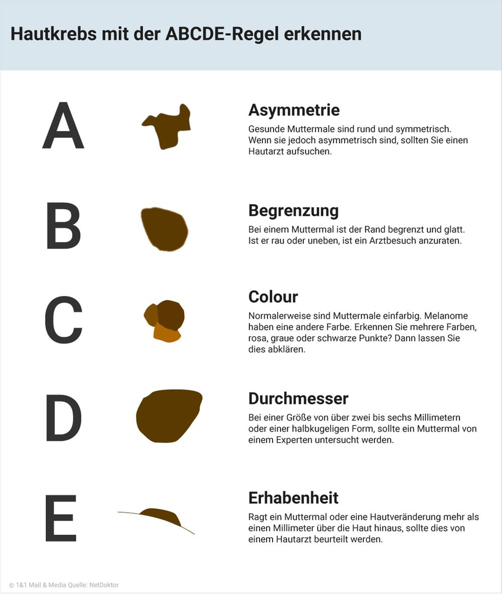 Hautkrebs mit der ABCDE-Regel erkennen