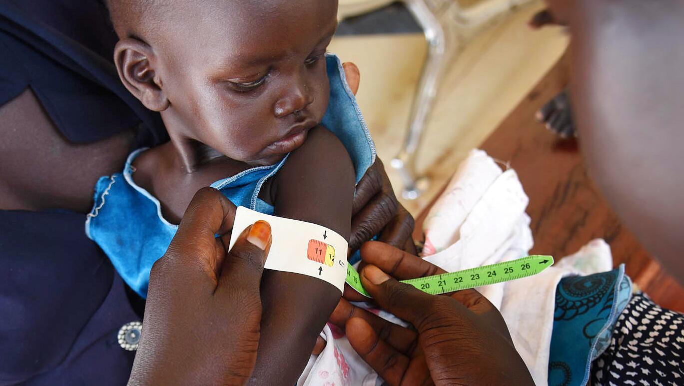 Bild zu Mangelernährung im Südsudan