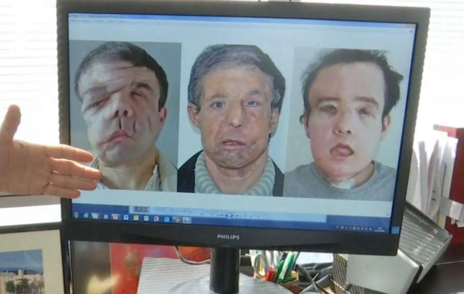 Bild zu Medizinisches Wunder: Franzose bekommt zweite Gesichtstransplantation